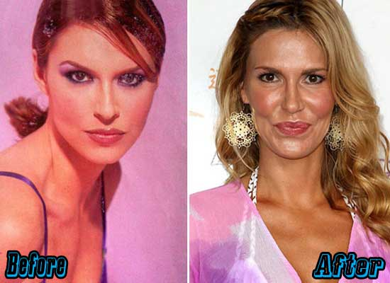 Brandi Glanville Plastic Surgery Before and After