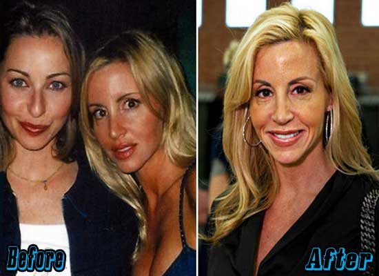 Camille Grammer Plastic Surgery Before and After