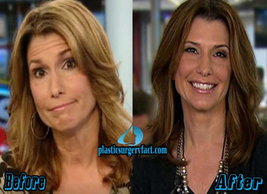 Carol Costello Facelift Before and After