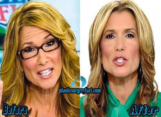 Carol Costello Plastic Surgery Before and After