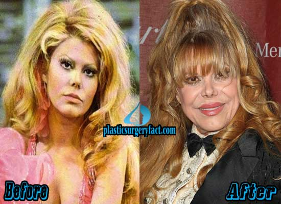 Charo Plastic Surgery Before and After