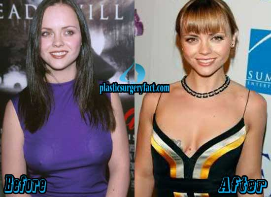 Christina Ricci Breast Reduction Before and After