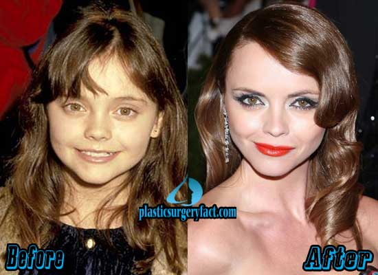 Christina Ricci Nose Job Before and After