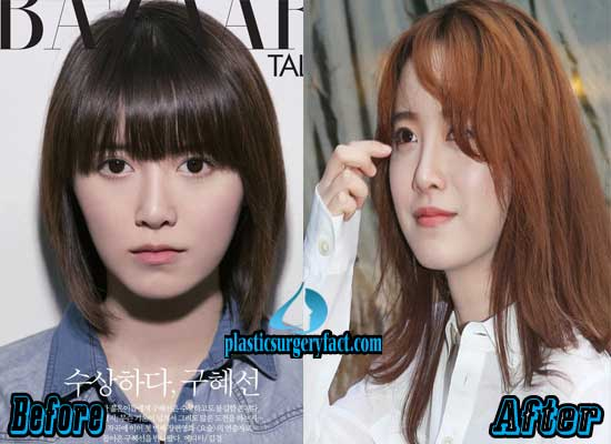 Goo Hye Sun Nose Job Before and After