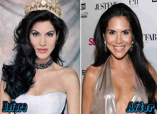 Joyce Giraud Plastic Surgery Before and After