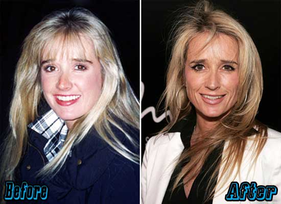 Kim Richards Plastic Surgery Before and After