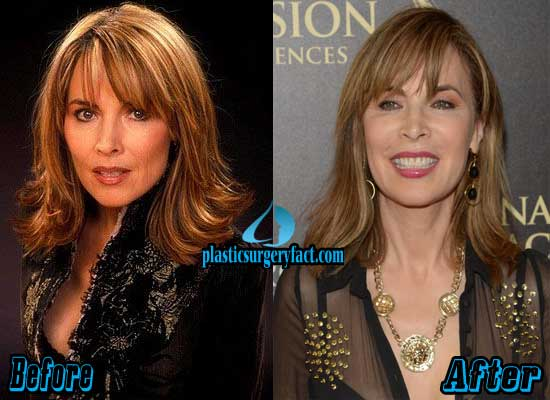 Lauren Koslow Plastic Surgery Facelift