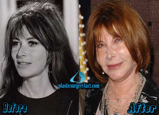 Lee Grant Plastic Surgery Before and After