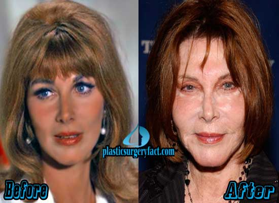 Lee Grant Plastic Surgery Facelift