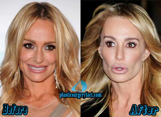 Taylor Armstrong Before After Plastic Surgery