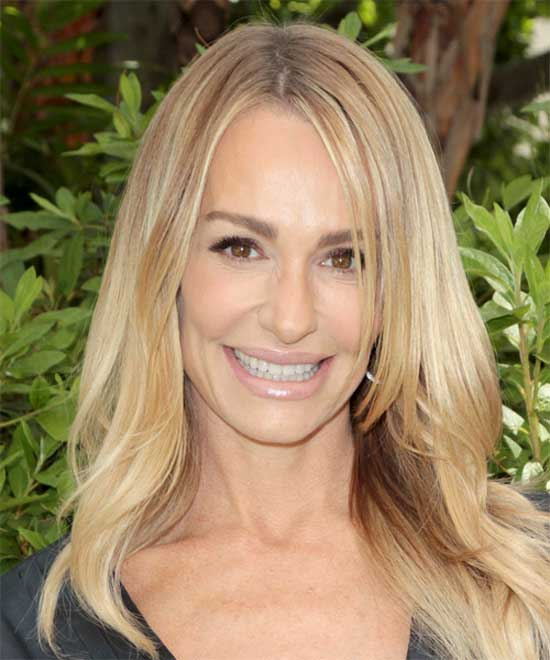 Taylor Armstrong Before Plastic Surgery
