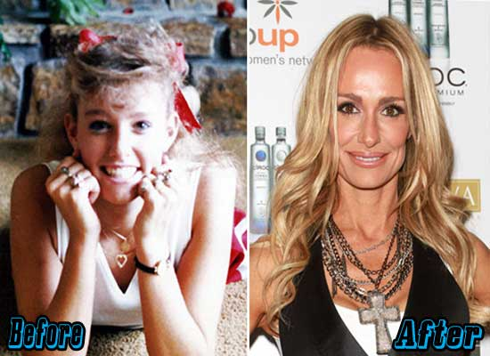 Taylor Armstrong Cosmetic Surgery Before and After