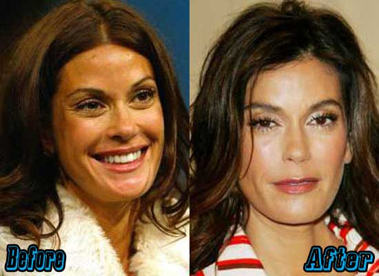 Teri Hatcher Nose Job Before and After