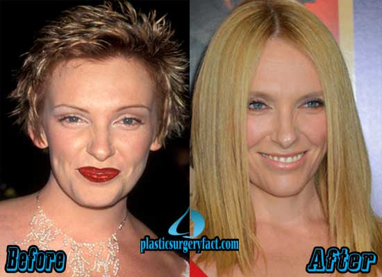 Toni Collette Plastic Surgery Before and After