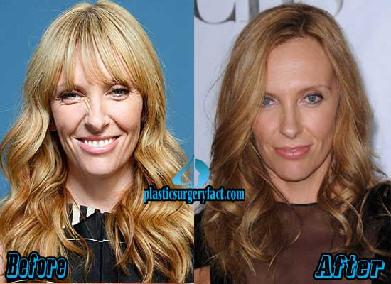 Toni Collette Plastic Surgery Facial Filler