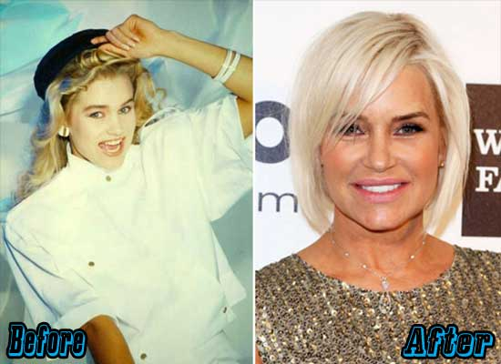 Yolanda Foster Plastic Surgery Before and After