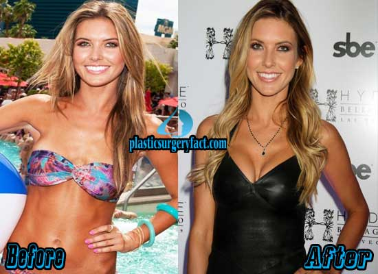 Audrina Patridge Breast Implants Before and After