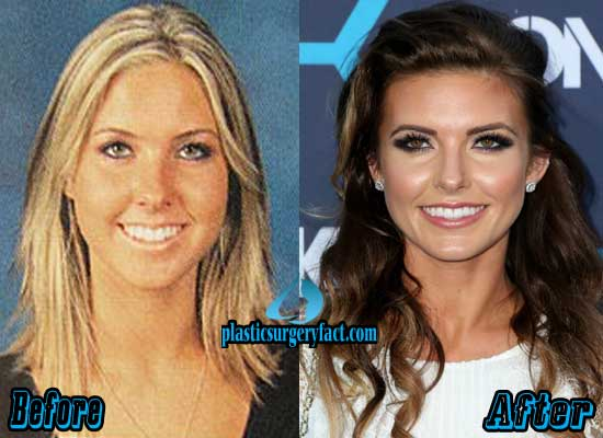 Audrina Patridge Nose Job Before and After