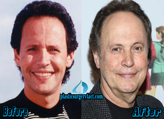 Billy Crystal Before and After Plastic Surgery
