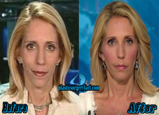 Dana Bash Facelift Before and After