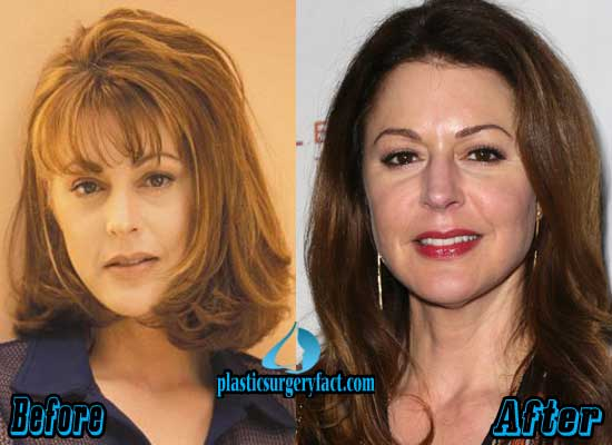 Jane Leeves Before and After Plastic Surgery