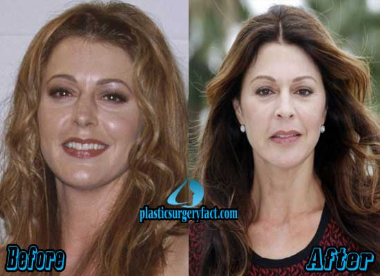 Jane Leeves Plastic Surgery Before and After