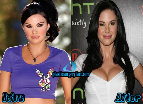 Jayde Nicole Breast Implant Before and After