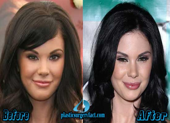 Jayde Nicole Nose Job Before and After