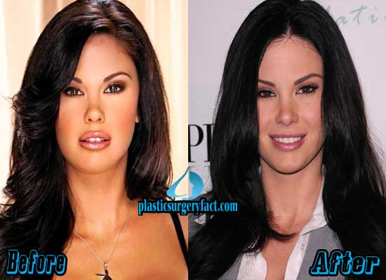 Jayde Nicole Plastic Surgery Before and After