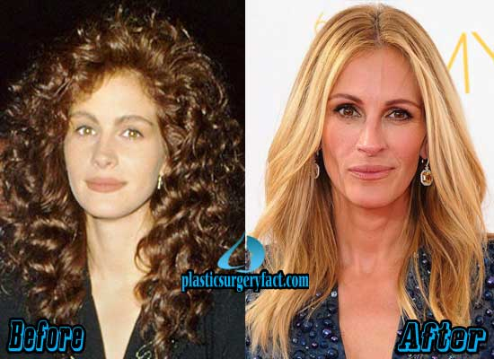 Julia Roberts Before and After Plastic Surgery