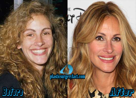 Julia Roberts Facelift Surgery