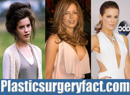 Kate Beckinsale Boob Job Before and After