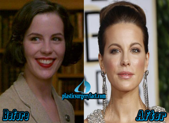 Kate Beckinsale Nose Job Before and After