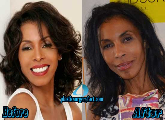 Khandi Alexander Before and After Plastic Surgery