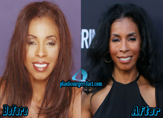 Khandi Alexander Plastic Surgery Before and After
