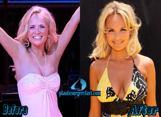 Kristin Chenoweth Breast Implant Before and After