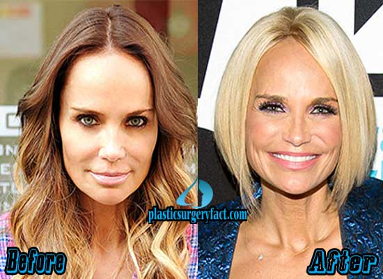 Kristin Chenoweth Nose Job Before and After