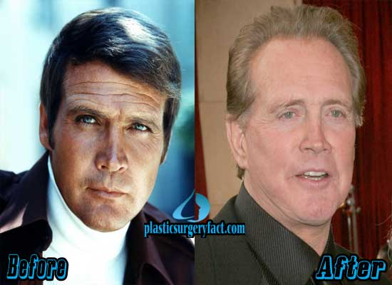 Lee Majors Facelift Before and After