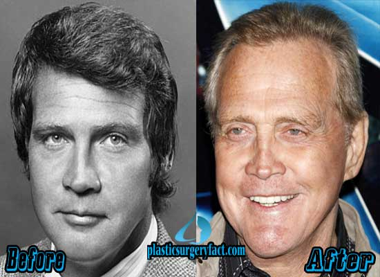 Lee Majors Nose Job Before and After