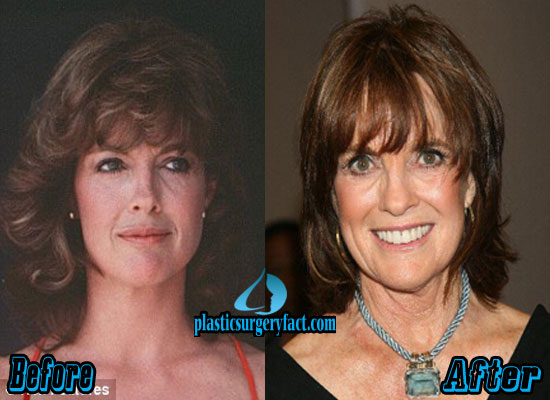 Linda Grey Before and After Plastic Surgery