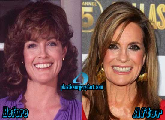 Linda Grey Plastic Surgery Before and After