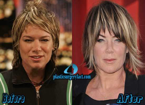 Mia Michaels Plastic Surgery Before and After