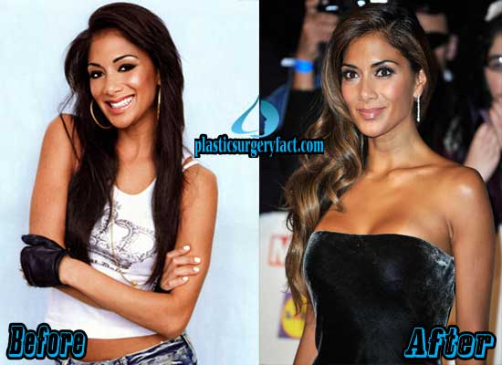 Nicole Scherzinger Breast Implant Before and After