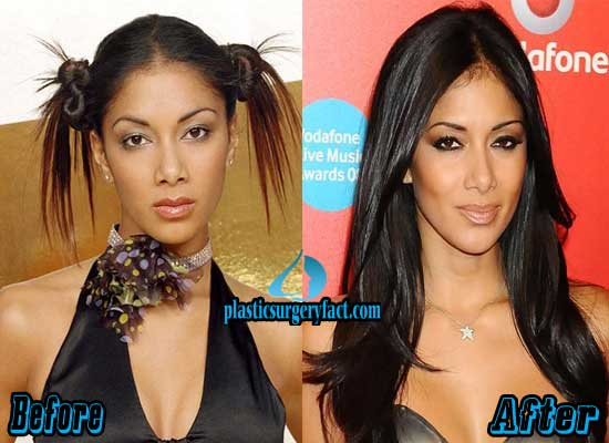 Nicole Scherzinger Nose Job Before and After