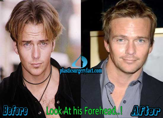Sean Patrick Flanery Facelift Before and After