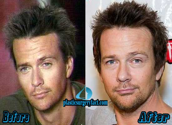 Sean Patrick Flanery Plastic Surgery Blepharoplasty