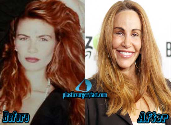 Tawny Kitaen Before and After Plastic Surgery