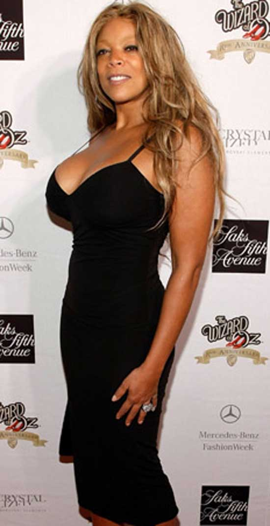 Wendy Williams After Boob Job and Liposuction