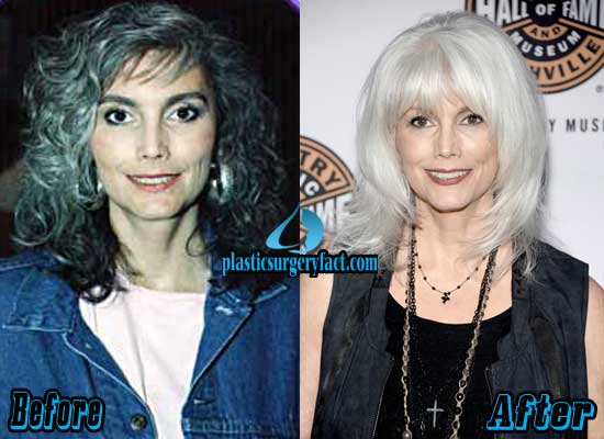 Emmylou Harris Plastic Surgery Before and After
