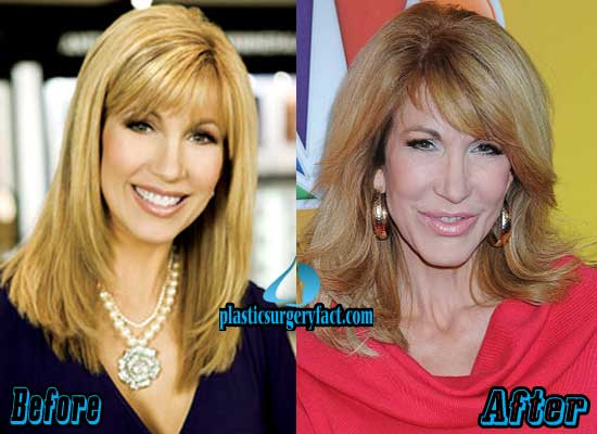 Leeza Gibbons Before and After Photod